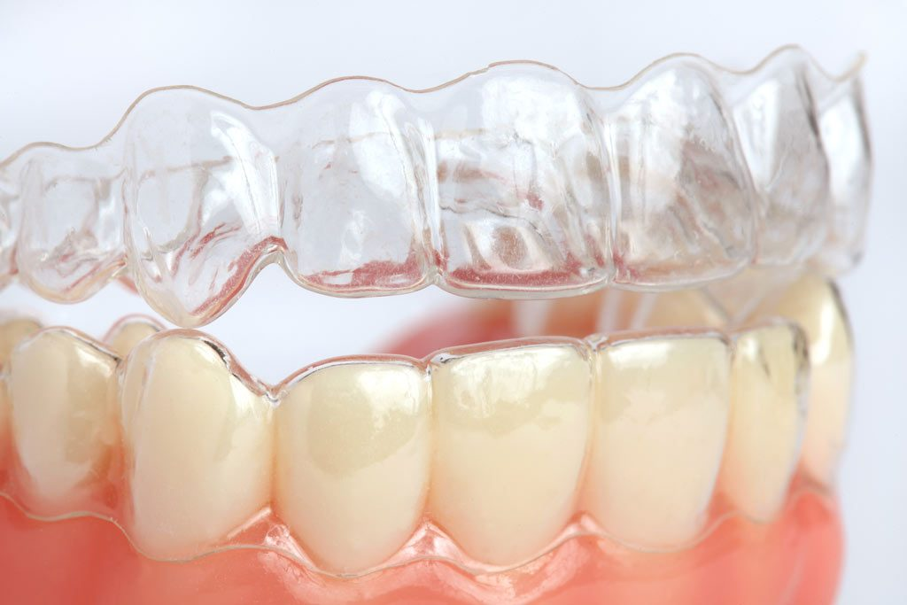 image for Price of Removable Braces in the Philippines