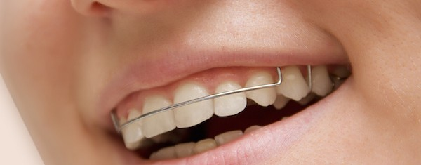image for Cheap Retainers in Manila
