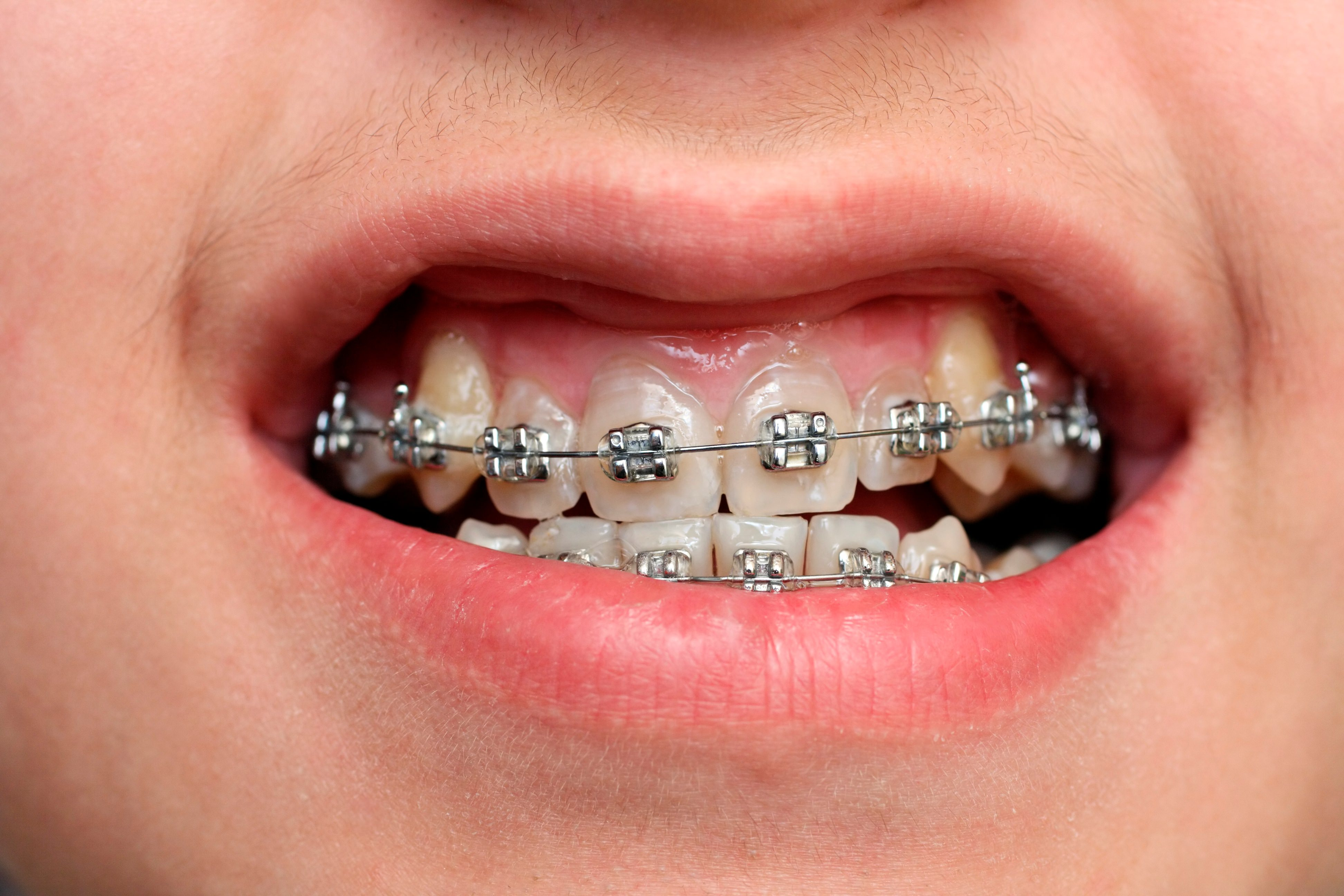 featured image for price of braces in manila
