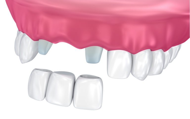 The cost of a fixed bridge in Manila hovers around the same price range as that of flexible dentures and regular dentures. The product is certainly popular for its simple answer to missing teeth. However, is the cost of a fixed bridge in Manila even worth your money? What qualities does it have that makes it the best mid to high level dental service? Well, this article will try and answer that question and more about the product and process of getting one. The Cost of A Fixed Bridge in Manila Now, the cost of a fixed bridge in Manila can start at around Php 23,000. However, the price can go up if the patient decides to get a fixed bridge made from emax and instead of porcelain. Emax is a specially heated ceramic that's much tougher than procelain yet still retains a natural look. The price of an emax fixed bridge in manila is around Php 26,000. Notice how there's not concrete price given? That's because prices change from one dental clinic to another. However, do know that their price tags will be rather close to the prices given above. Related: How to Find An Affordable Fixed Bridge in Manila The Procedure A fixed bridge gets its name because it's essentially a flase tooth anchored by two abutment caps. These caps are placed on the two adjacent teeth of the missing tooth. In order to lock it in place, you dentist will file the two teeth down to size in order to make space for the caps. It is then sealed with a bonding agent thus making a dental bridge. If you're worried about the dentist filing the two adjacent teeth, then do know that the amount of space taken won't be much. This is because the abutment caps are smaller than regular dental crowns. Here are some of the benefits of a dental bridge: Comfort - once its locked in place and thanks to its material, a dental bridge will feel as it was a normal set of teeth. Maintenance - unlike dentures, a dental bridge requires no special maintenance. Just treat it is as a normal tooth. Long lasting - be it porcelain or ceramic, a dental bridge can last up to 10 - 15 years if kept relatively secure from harm and bacteria. Some Alternatives If you can't afford a dental bridge, then dentures are still a viable option. However, do know that dentures come with a few drawbacks that causes discomfort. If you have enough money to buy three fixed bridges, then it's probably worth thinking about dental implants. A dental implant is a small root implant that's inserted into your jawbone. This root implant is then capped off with a dental crown. Conclusion Remember, if you want to learn if any of the services and products mentioned above are for you, then consult your dentist. Doing so will give you the insight needed to make a more concrete decision for your dental health. Always do this whenever a certain dental service or procedure has piqued your interest.