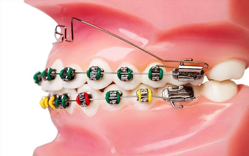 image for price of braces in manila