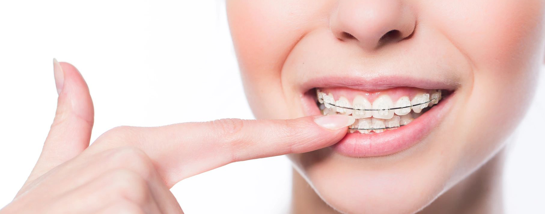 How Much Does It Cost To Get Braces in Manila