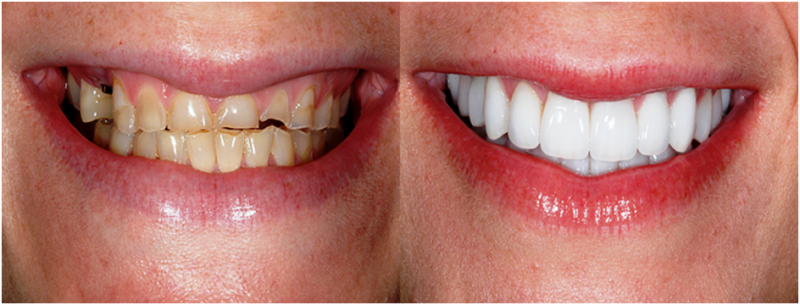 featured image for cost of emax veneers in the philippines