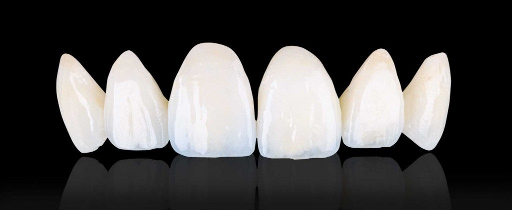 What Is The Cost of Emax Veneers in the Philippines? – Asian Sun Dental Clinic Manila