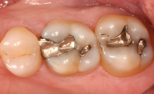 image for cost of teeth restoration in the philippines