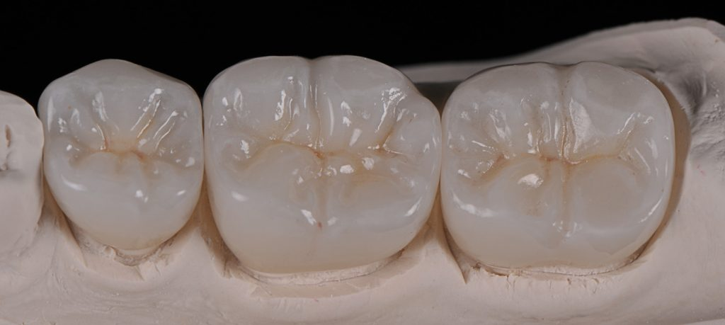 image for cost of emax veneers in the philippines