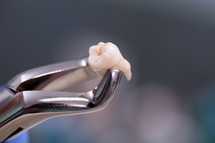 image for price of a tooth extraction in manila