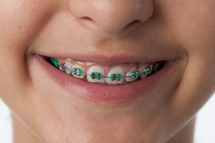 image for Orthodontist in Manila