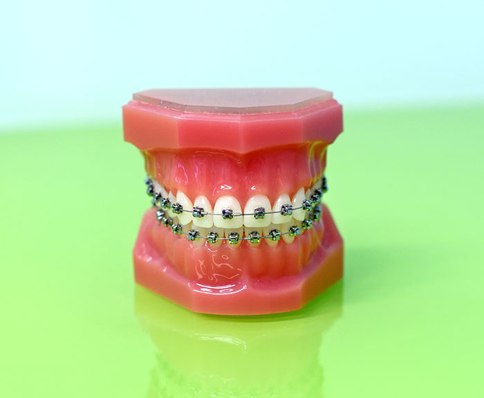 featured image for Should you get braces