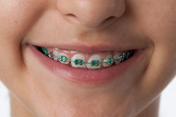 Should You Get Braces? - Asian Sun Dental Clinic Manila