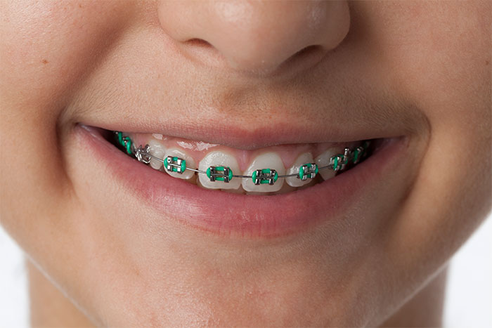 image for Should you get braces