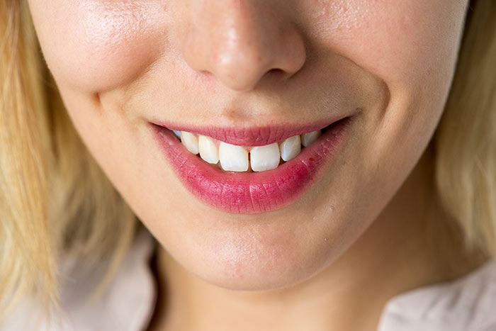 featured image for How much does it cost to whiten your teeth
