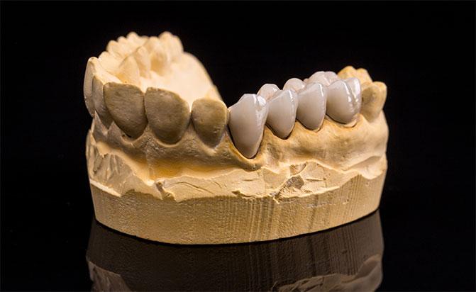 image for dentures vs. dental bridges
