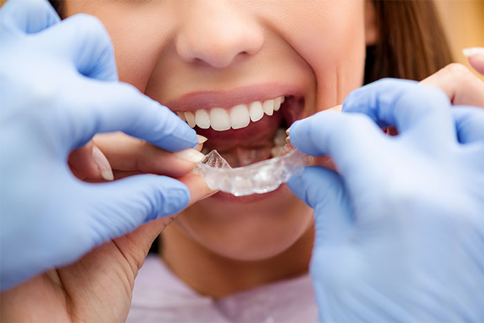image for price of orthodontics in Manila