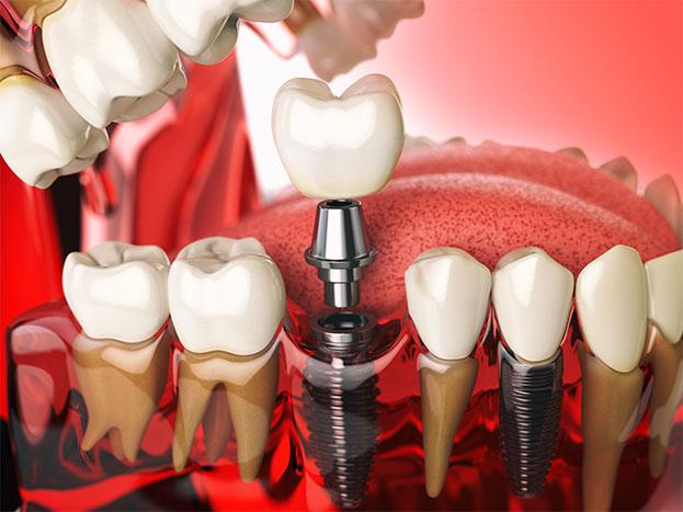 image for Can I afford dental implants