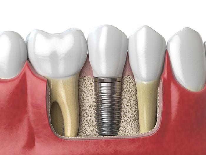 featured image for dentures vs. dental implants
