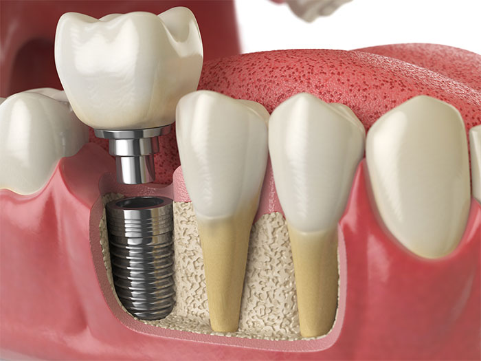 image for dentures vs. dental implants