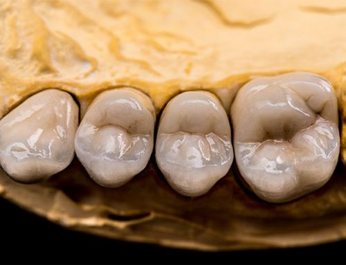 Dental Crowns vs. Dental Veneers: What's Better?