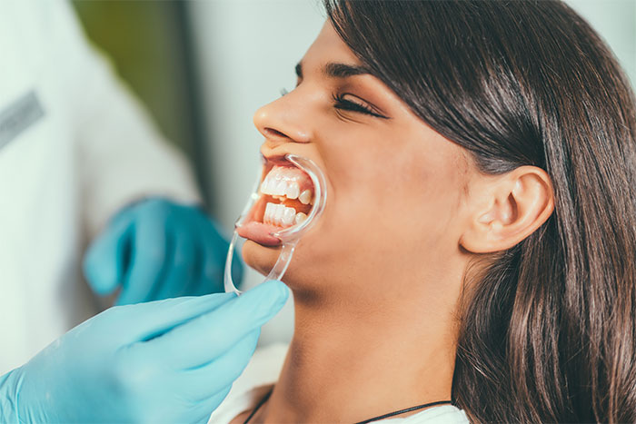 image for Can the dentist whiten my teeth
