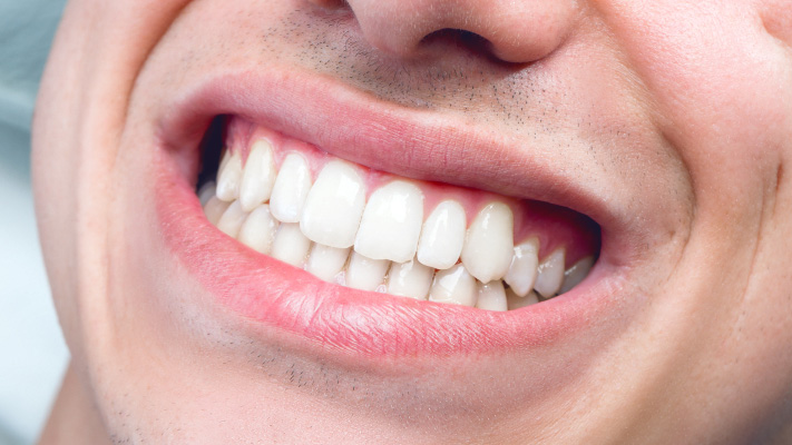 featured image for How do you keep your teeth white