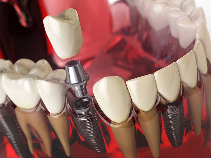 image for Are dental implants worth it