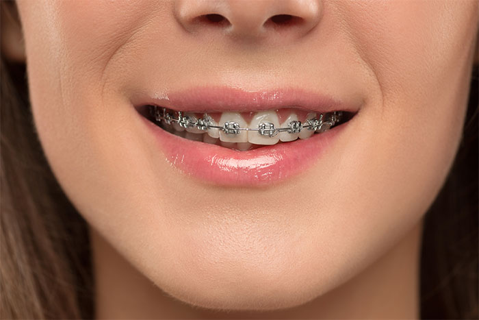image for How much are braces