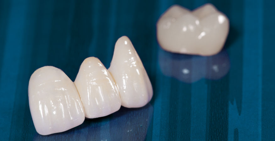 featured image for benefits of dental crowns