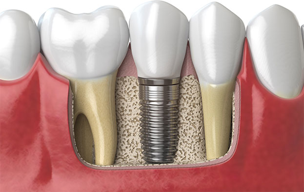 image for cost of a tooth implant in the Philippines