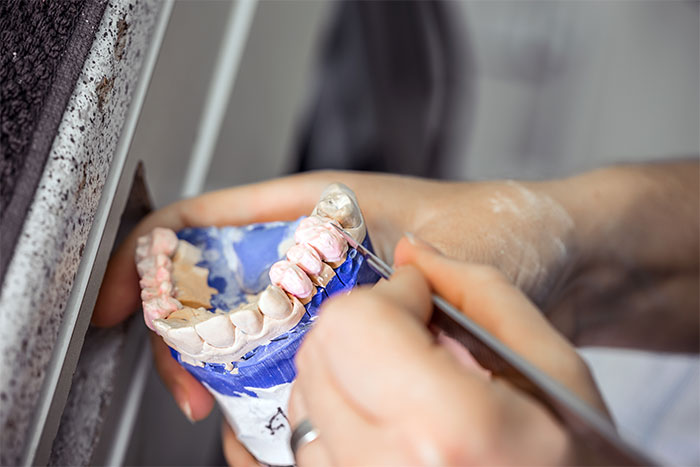 featured image for False teeth