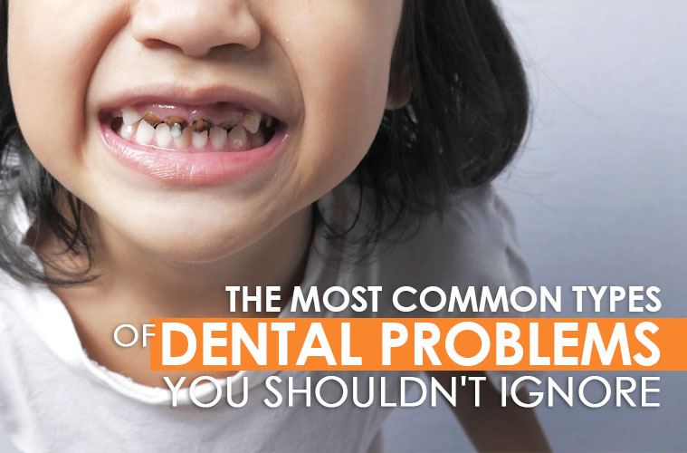 The Most Common Types of Dental Problems You Shouldn't Ignore
