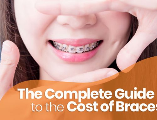 The Complete Guide to the Cost of Braces