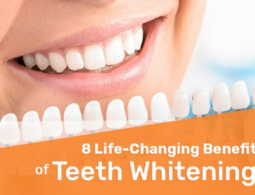 8 Life-Changing Benefits of Teeth Whitening