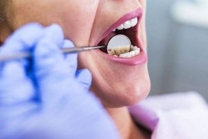 Can I Get Dental Bridges after a Tooth Extraction?