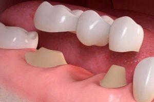 Why Should I Use Dental Bridges?