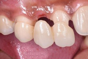 How Many Teeth Can Be Used with Dental Bridges?