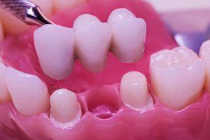 Should I Choose Dental Bridges over Dental Implants?