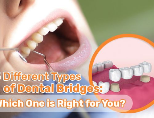 5 Different Types of Dental Bridges: Which One is Right for You?
