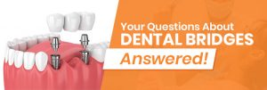 Your Questions About Dental Bridges Answered!